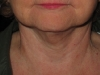 post-op-5-months-smartlipo-chin-silhouette-lift-and-neck-lift