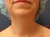 before-chin-2