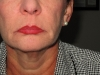 post-op-1month-mid-face-and-neck-lift-center-view