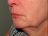 pre-op-mid-face-and-neck-lift-left-view