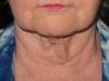 pre-op-smartlipo-chin-silhouette-liftand-neck-lift